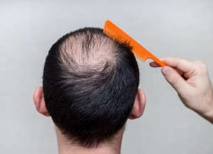 Man_with_comb